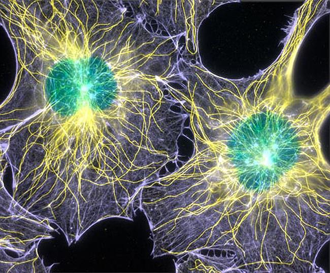 Ядовитые стволовые клетки: суперлекарство от рака