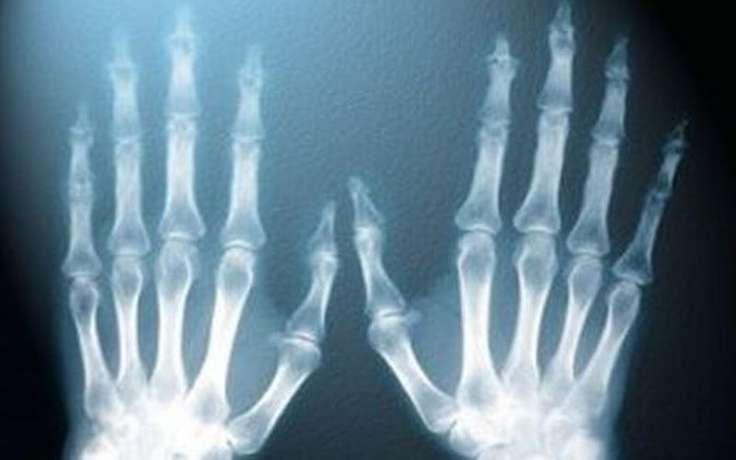 Рентгеновские лучи могут вызвать развитие рака