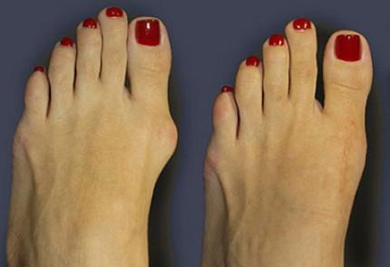 Операция по удалению косточки на большом пальце