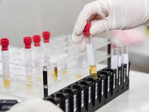 Разработан простой анализ мочи на рак поджелудочной железы