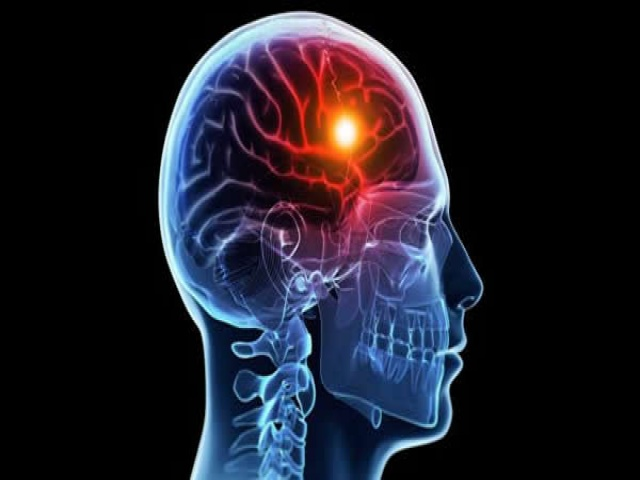 Наличие в анамнезе онкологического заболевания детского возраста – независимый фактор риска развития повторного инсульта