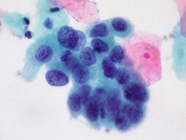 Рак поможет вылечить лекарство от шизофрении