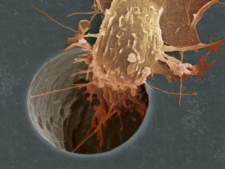 Ученые нашли 74 предпосылки рака