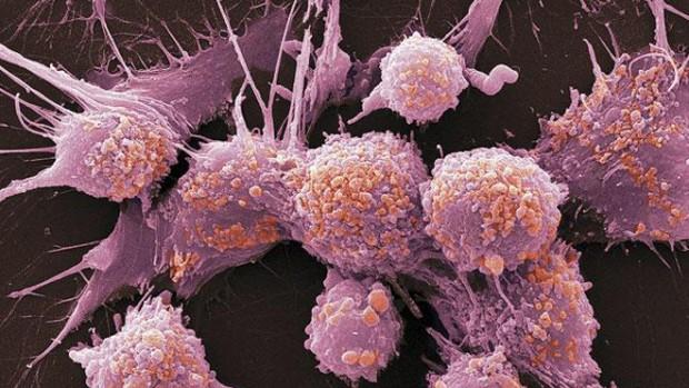 Ученые обнаружили 5 видов рака простаты