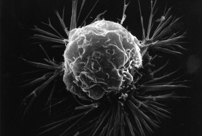 Ученые совершили прорыв в борьбе с раком: найдено уязвимое место опухоли