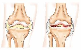 Как отличить артрит и артроз