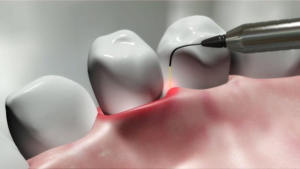 Лазерная стоматология: плюсы и минусы