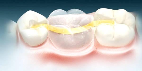 Микропротезирование зубов при помощи нейлонового протеза