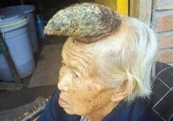 Быстро отрастающий «рог» на голове старушки из Китая очень озадачил врачей