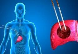 Новый метод лечения рака поджелудочной железы заметно улучшает состояние больных