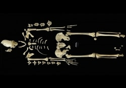 Лейкозами страдали и наши далекие предки, жившие в условиях идеальной экологии
