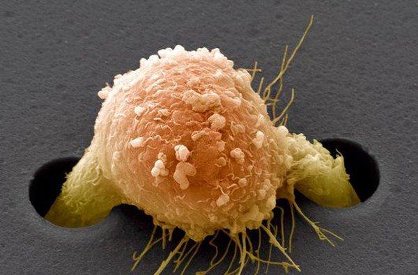 Разработаны имплантаты, притягивающие раковые клетки