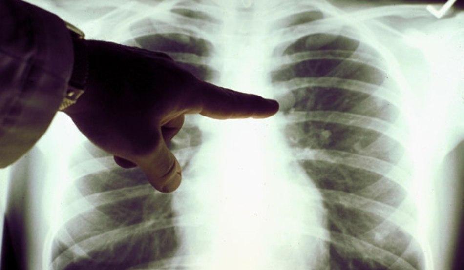 Опасную форму рака легких есть надежда победить