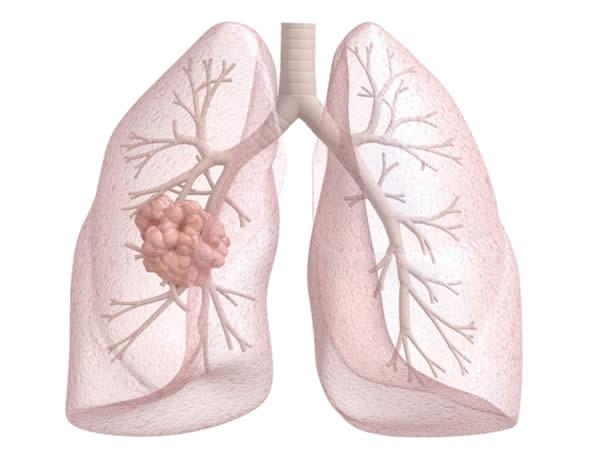 Новая терапия уменьшает метастазы меланомы в легких