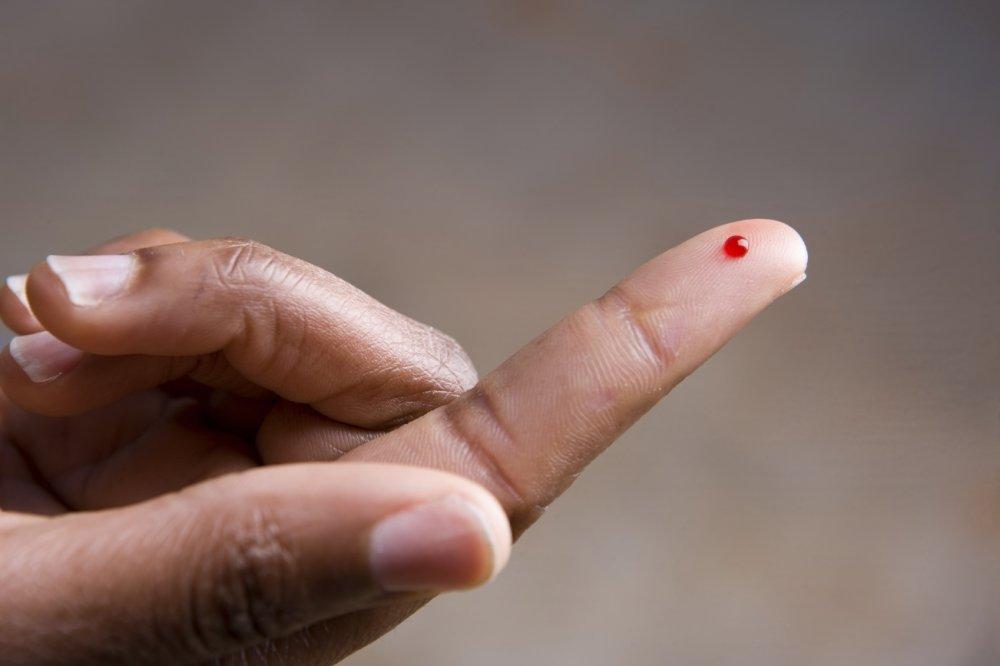 Ученые научились «предсказывать» рак крови
