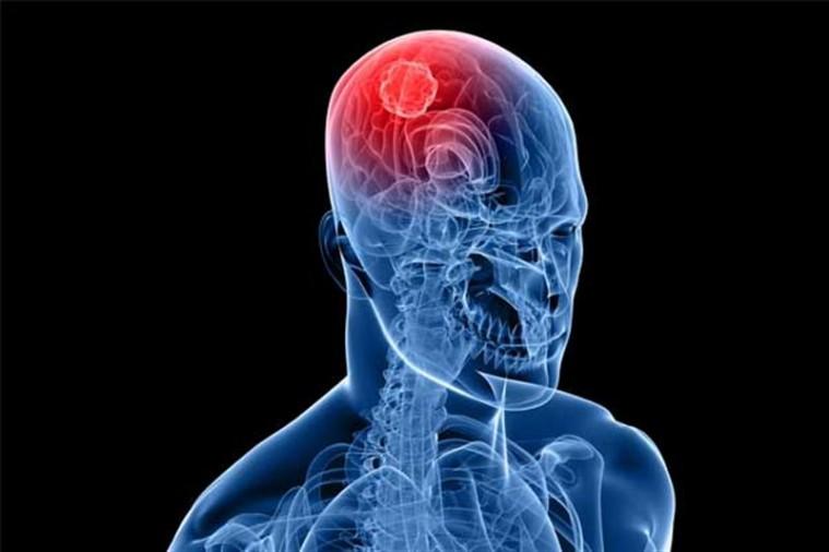 Избыточный вес, ожирение и гиподинамия – независимые факторы риска развития менингиомы