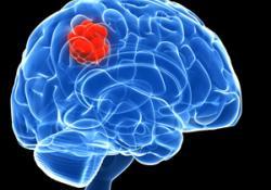 Избавление от лишнего веса защитит от диабета, инфаркта и опухолей мозга