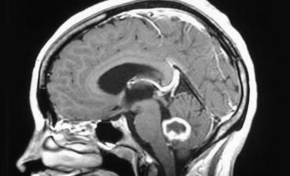 Радио- и химиотерапия глиобластомы способны вызывать значительные структурные изменения здоровых тканей головного мозга