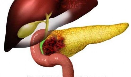 Комбинация двух препаратов проявила цитостатический эффект в отношении нейроэндокринных опухолей поджелудочной железы