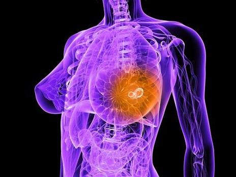 Ученые выявили фермент, вызывающий рак молочной железы