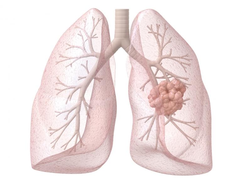 Использование компьютерной томографии для мониторинга состояния больных раком легкого в послеоперационный период заметно повышает 4-летнюю выживаемость