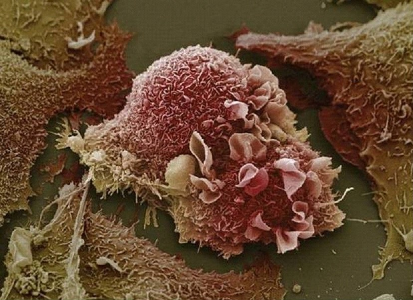 Ученые выяснили, почему родинки не превращаются в раковые опухоли
