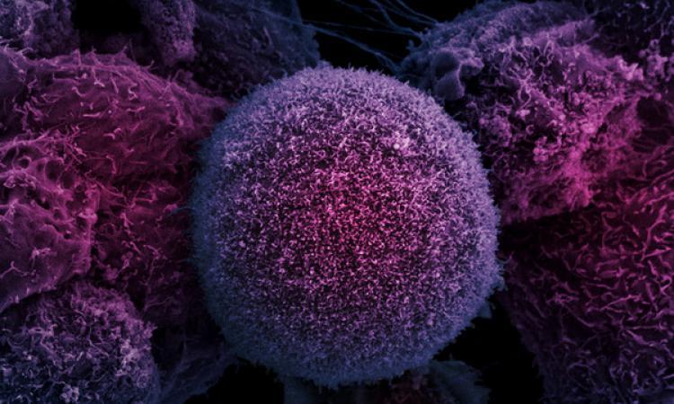 Как можно вылечить рак
