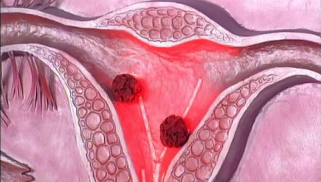 Женщины часто игнорируют симптомы рака матки и рака яичников