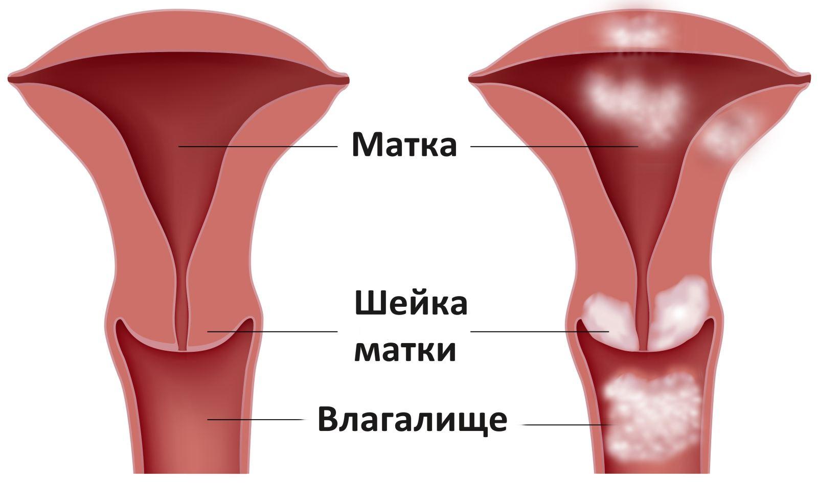 Фото онкологические заболевания вагины 28 фотография