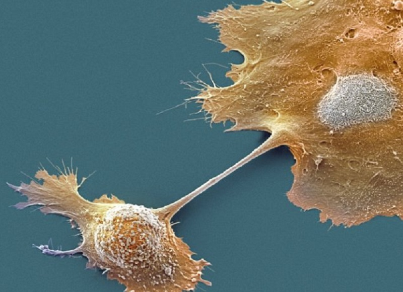 Ученые огласили ранний признак рака поджелудочной железы
