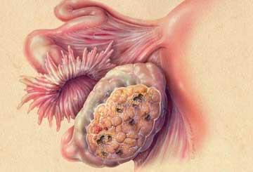 Прием препаратов ЗГТ в период лечения эпителиального рака яичника и после завершения такого лечения связан со снижением смертности