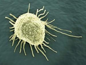 Врачи назвали пять основных симптомов рака, которые нельзя игнорировать