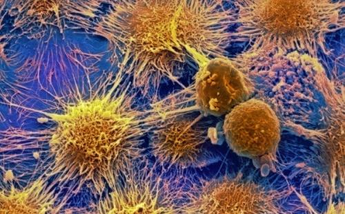 Малина уничтожает раковые клетки