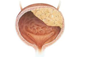 Фрукты и овощи снизят риск рака мочевого пузыря у женщин