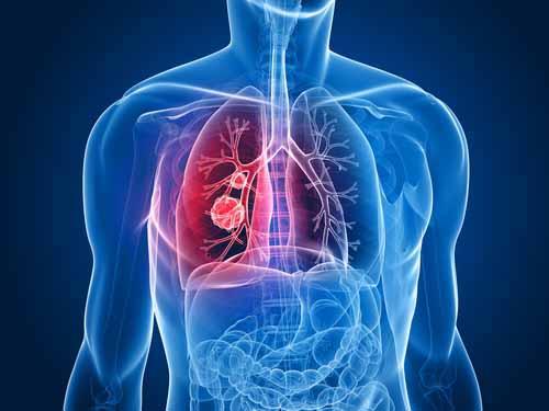 Исследователи научились точнее оценивать риск рака легких
