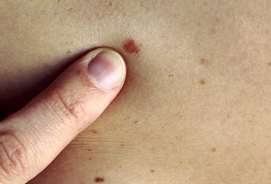 Рак кожи можно определить по количеству родинок
