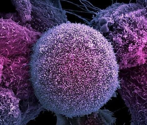 Ученые предложили новый способ борьбы с раком