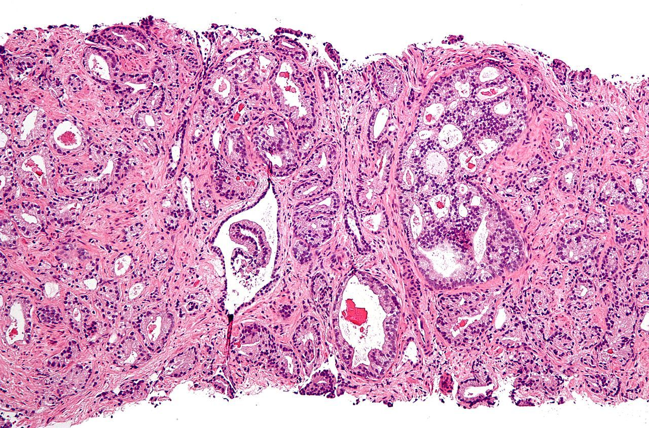 GBI Research: рынок ЛС против рака предстательной железы в 2021 году составит 7,6 млрд долларов