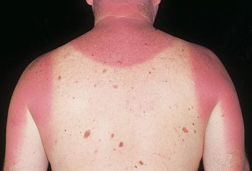 Солнечные ожоги повышают риск развития рака кожи