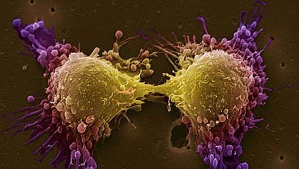 Рак простаты передается половым путем