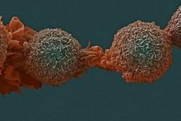Как убежать от рака: 10 советов врача