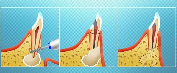 Резекция верхушки корня зуба, как возможность вернуть здоровье для всей полости рта