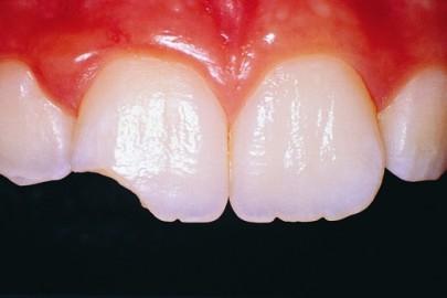 Что делать, если вы поломали зуб?