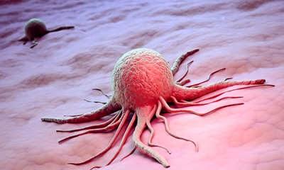 Клиническая картина опухолей