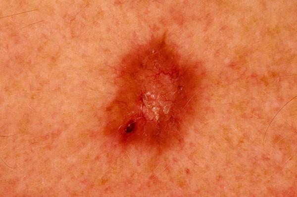 Новое в науке: электронный пластырь для лечения рака кожи