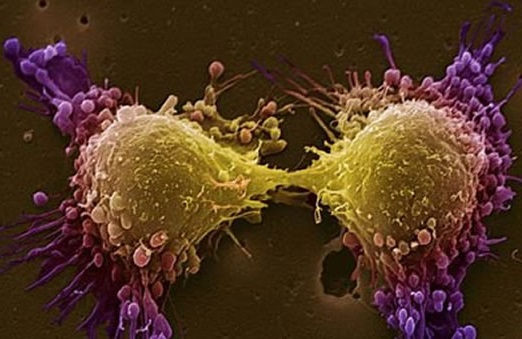 Виновник рака простаты: мутировавший ген