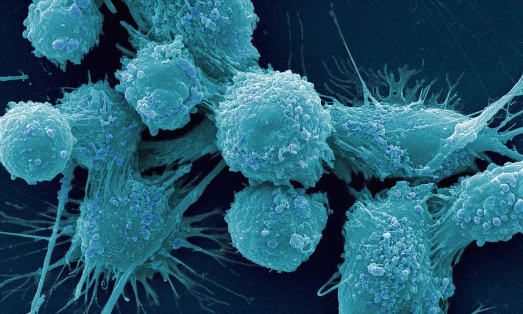 Роботы помогут победить рак