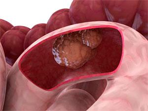 Предотвратить рак толстой и прямой кишки под силу витамину В6