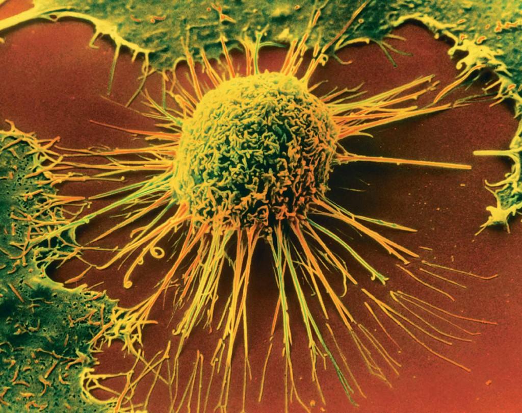 Магнитное поле помогает саморазрушаться раковым клеткам