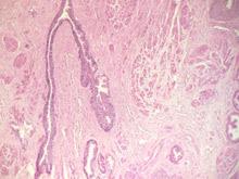 Регулярная проверка может реально спасти от рака простаты
